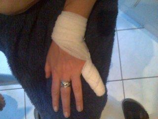 Dicker Verband um kleinen Finger